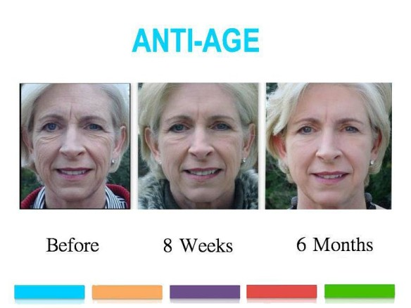 antiagebeforeafter
